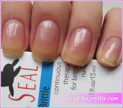 Kinetics nano seal dry brittle continuous therapy for brittle nails review photos nail - Easy home remedy strengthen dry brittle nails ...