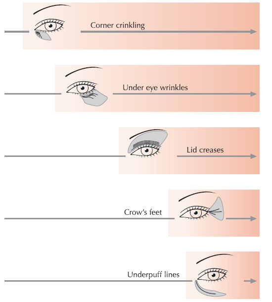 Different-Types-of-Wrinkles